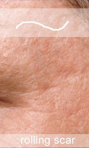Rolling scars are depressed scars with gentle sloping edges that disappear when the skin is stretched.
