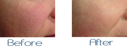 Laser Treatments for Large Pores